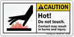 Hot Do Not Touch Result In Burns Label